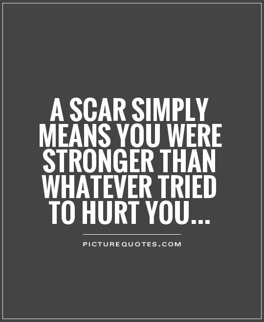 a-scar-simply-means-you-were-stronger-than-whatever-tried-to-hurt-you-quote-1